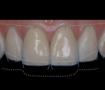 Diplomado-Estética-Odontología