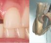 CADCAM-Diplomado-Odontología