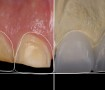 Foto-Diplomado-Odontología-Restauradora-Digital-final